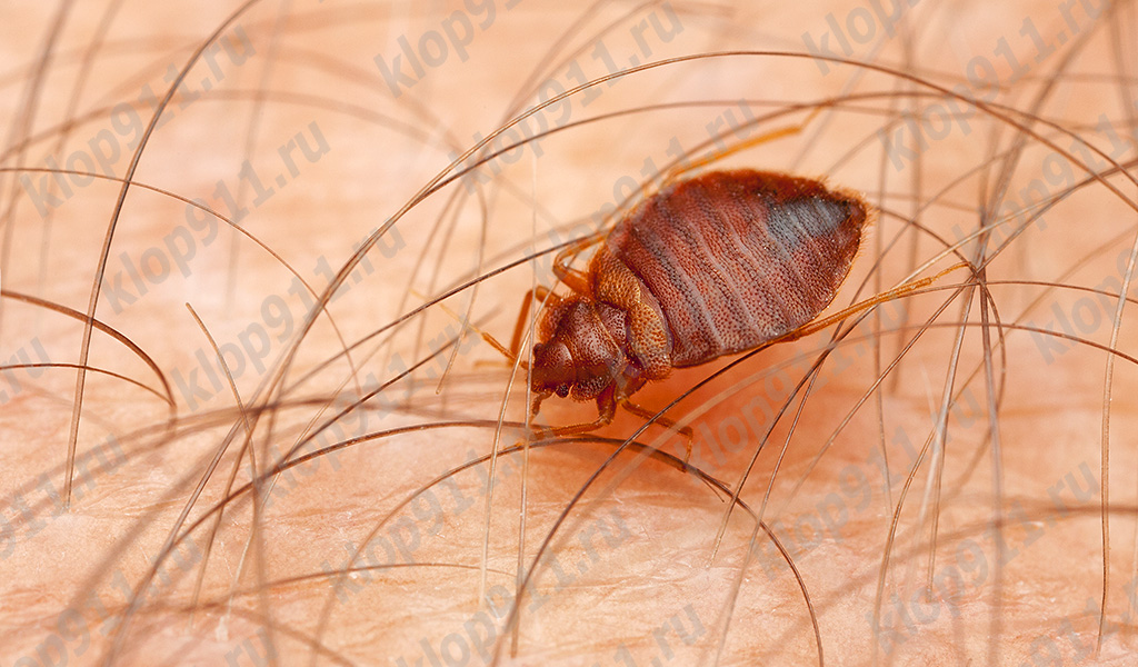 Un tempo il bug fa molti morsi