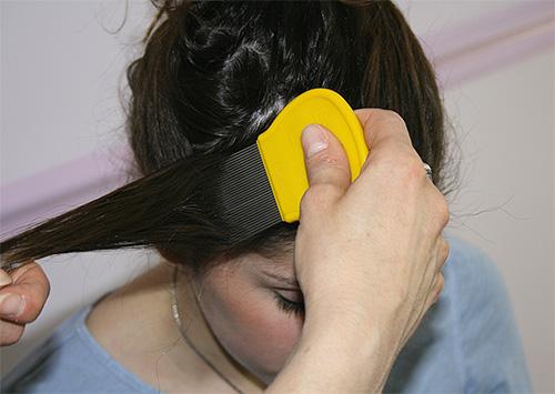 Dopo il trattamento della testa con uno spray o uno shampoo, dovresti pettinare i pidocchi con un pettine speciale, ciocca per ciocca.