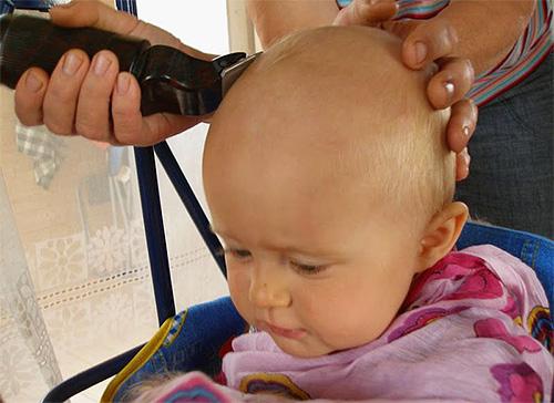 La rasatura delle zone infette da pidocchi del corpo è il modo migliore per sbarazzarsi dei pidocchi.