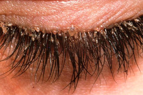 Un altro esempio di ciglia infestate dai pidocchi.