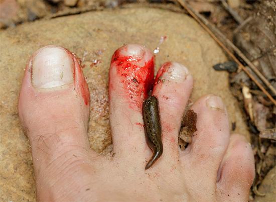 La sanguisuga attaccata al dito dell'uomo.