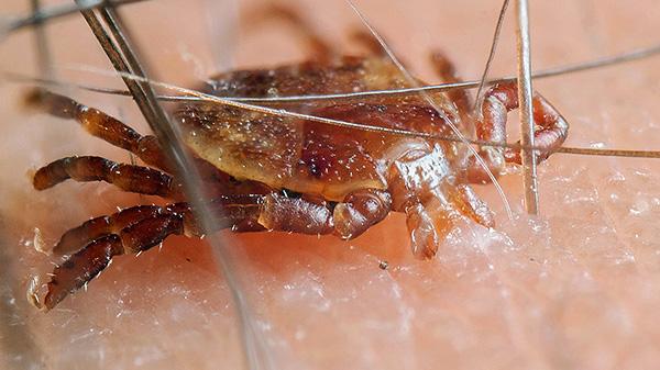 L'infezione è possibile solo quando il parassita morde e se si è appena strisciato sulla pelle, è sicuro.